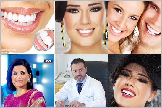 Hollywood Smile beirut lebanon