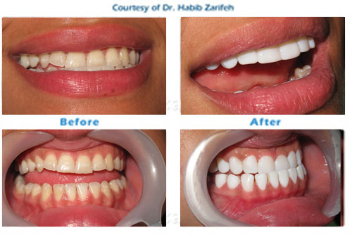 Hollywood smile Teeth Whitening in Beirut Lebanon
