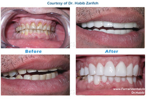 Hollywood smile Composite veneers in Beirut Lebanon