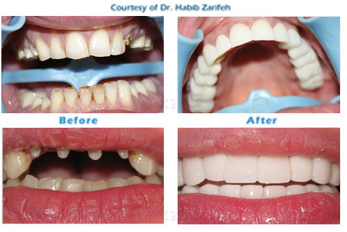 Hollywood smile Zirconium crowns in Beirut Lebanon