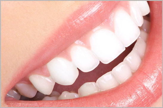 Laser Teeth Whitening Bleaching beirut lebanon Hollywood Smile